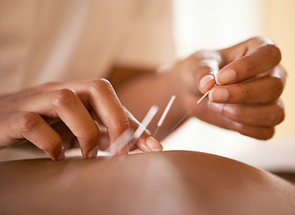 Is an acupuncture treatment painful?